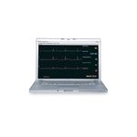 Sim Vitals 5-Line Monitor SMART STAT