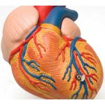 Classic Heart with Left Ventricular Hypertrophy (2-Part)