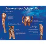 IM Injection Sites Poster