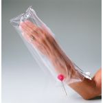 Inflatable Splint Hand and Wrist
