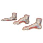 MEDart Foot Series