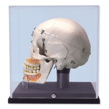 Deluxe Demonstration Skull with Display Case (10-Part)
