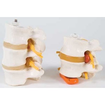 3 Lumbar Vertebrae (Flexibly Mounted)