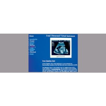 NOELLE® Ultrasounds Simulation Software
