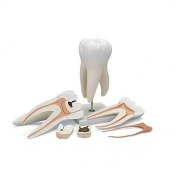 Giant Molar with Dental Caries (15X Life-Size, 6-Part)