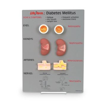 Diabetes Mellitus Display